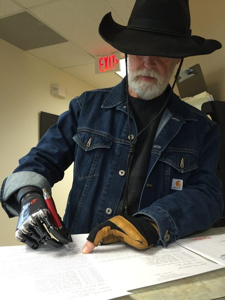prosthetic hand BeBionic