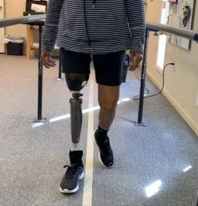 cynthia saunders above knee gait training
