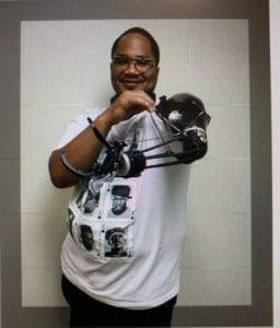 prosthetic arm, Prosthetic Arm Solutions